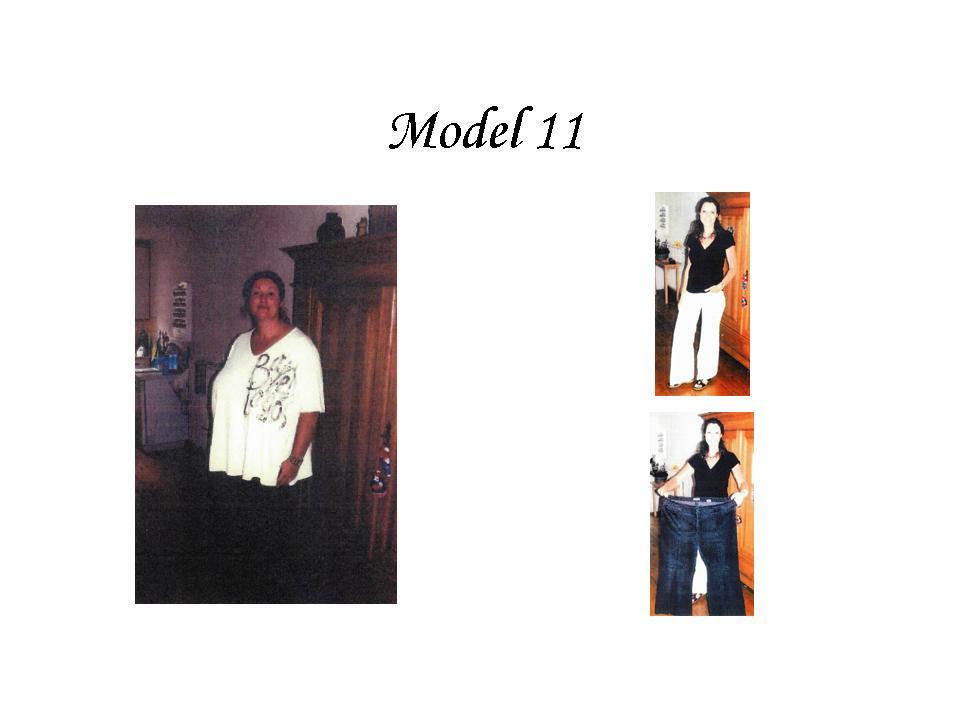Endovelicus Modellen 12